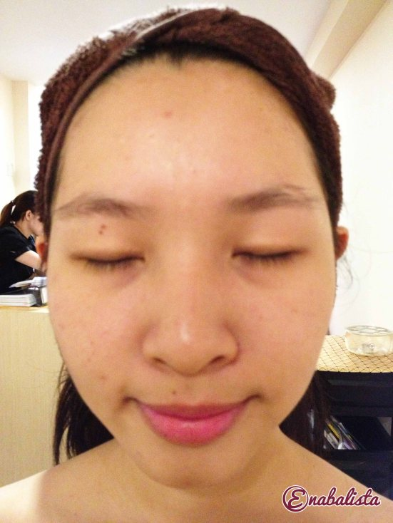 Ena Glomax Facial Review 6